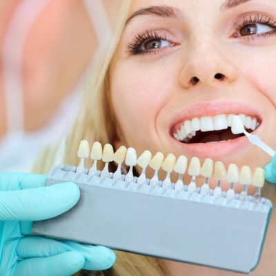The Ultimate Guide On Teeth Whitening Treatment